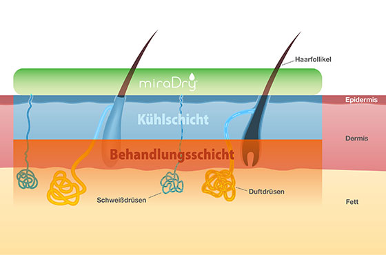 miradry® Düsseldorf – applied to the layers of the skin