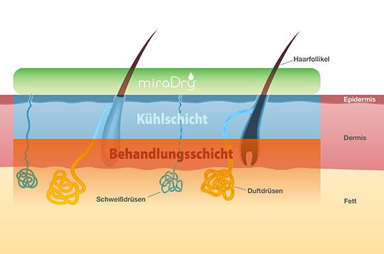 miradry® Düsseldorf – Anwendung in den Hautschichten