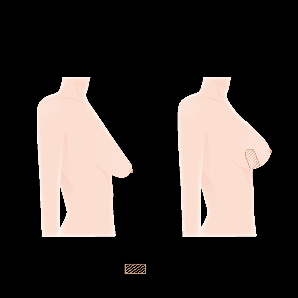 Brustverkleinerung mit der inneren BH-Technik
