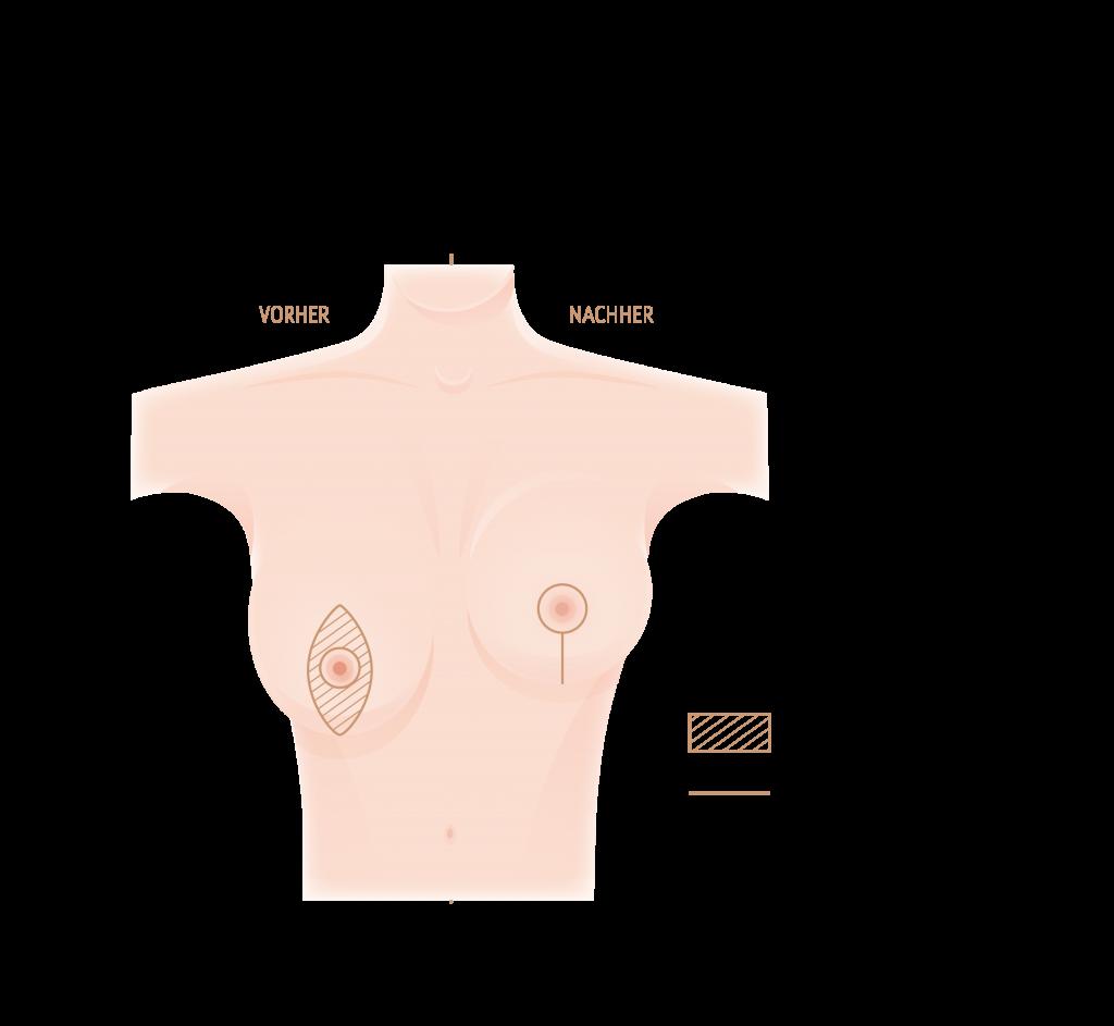 Bruststraffung mit der i-Schnitt Technik