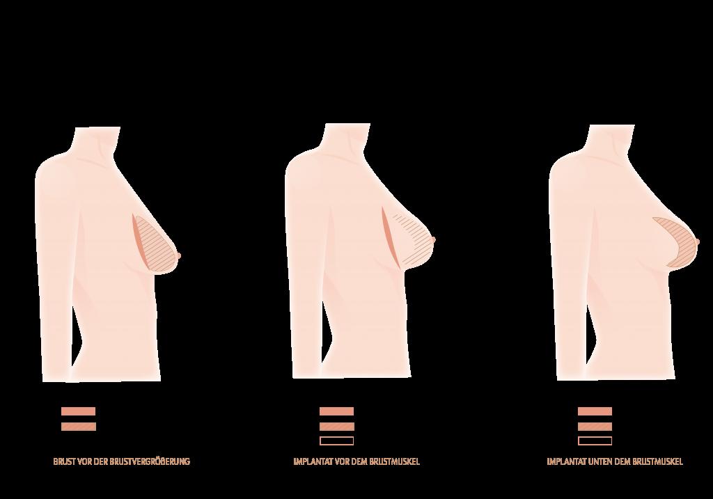 brust verbesserung system