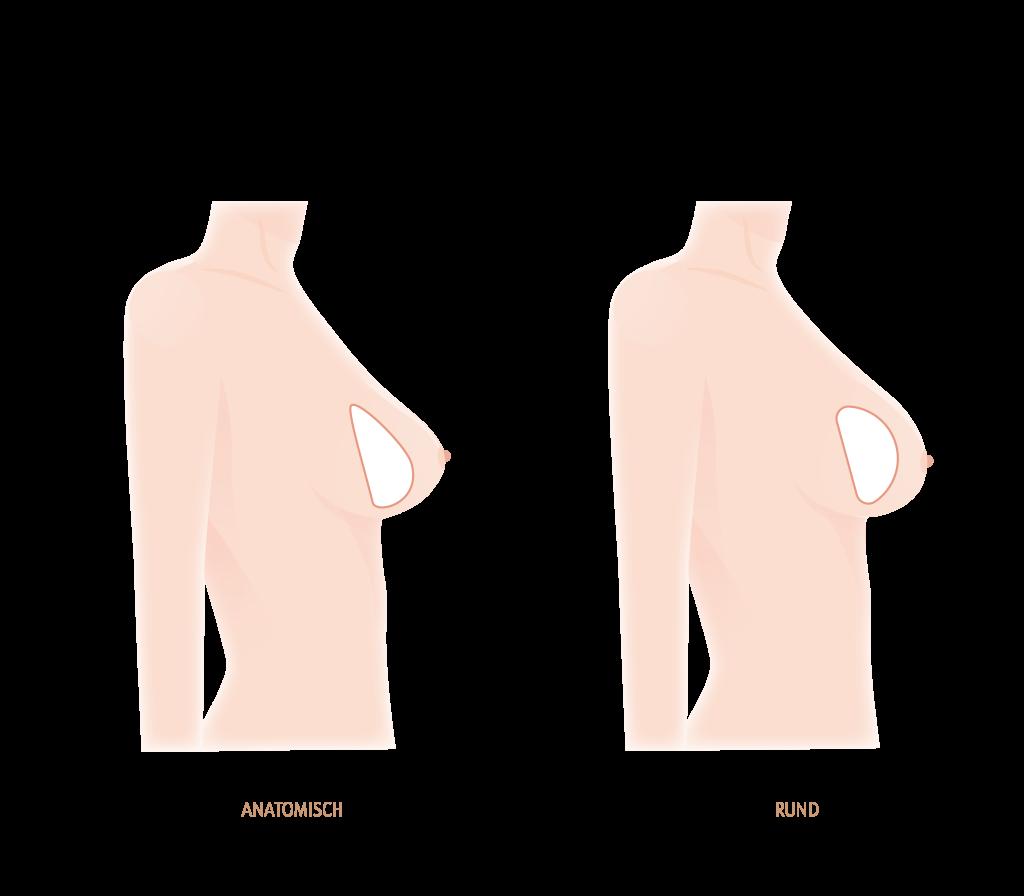 Implantatformen für die Brustvergrößerung rund oder anatomisch