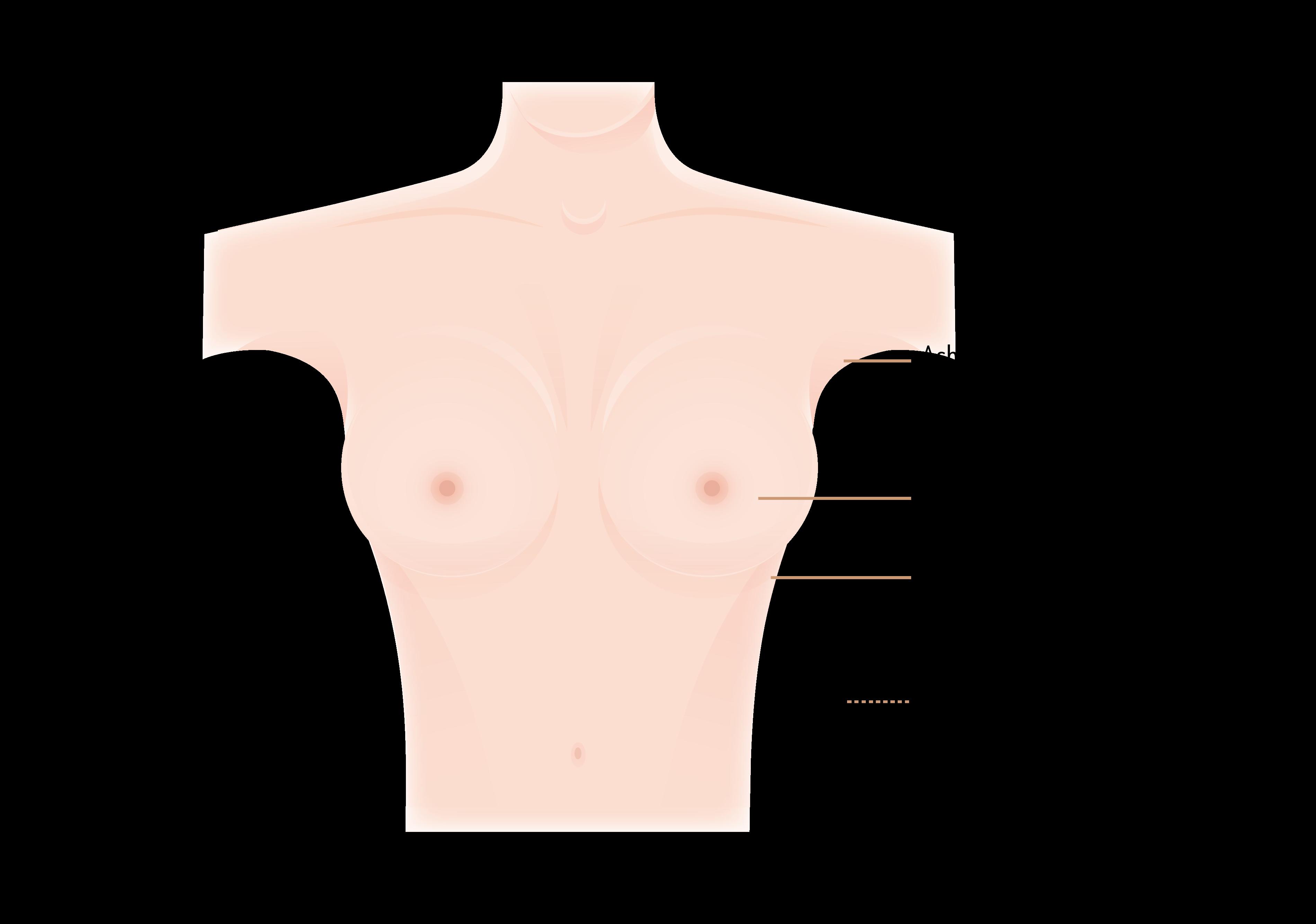Schnittführung und Narben bei der Brustvergrößerung